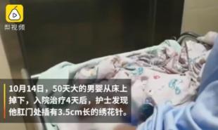 男婴被插绣花针 还被检查出颅脑多处骨折